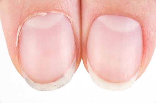 fingernail comparison